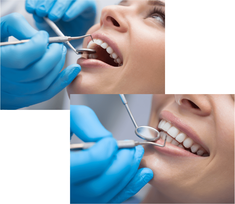 tratamientos dentales cartagena - clinica dental del valle