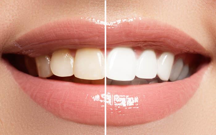 Los 5 consejos básicos para tu blanqueamiento dental